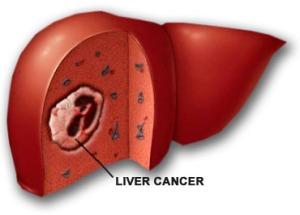 Obat Alami Liver